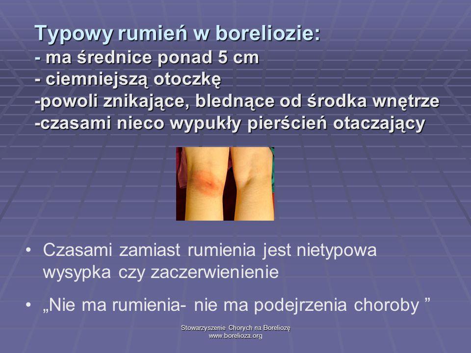 Stowarzyszenie Chorych na Boreliozę www.borelioza.org Typowy rumień w boreliozie: - ma średnice ponad 5 cm - ciemniejszą otoczkę -powoli znikające, bl