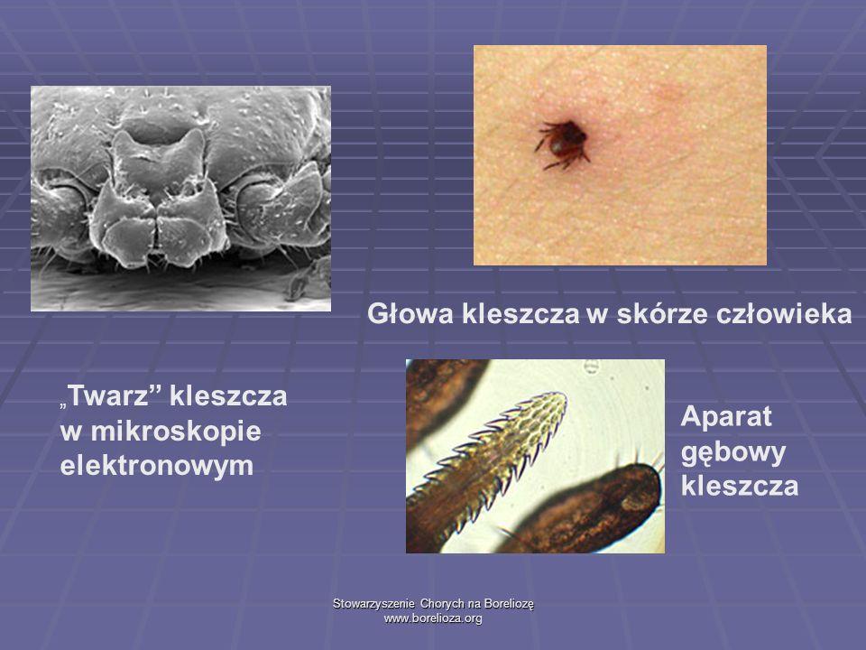 Stowarzyszenie Chorych na Boreliozę www.borelioza.org Twarz kleszcza w mikroskopie elektronowym Głowa kleszcza w skórze człowieka Aparat gębowy kleszc