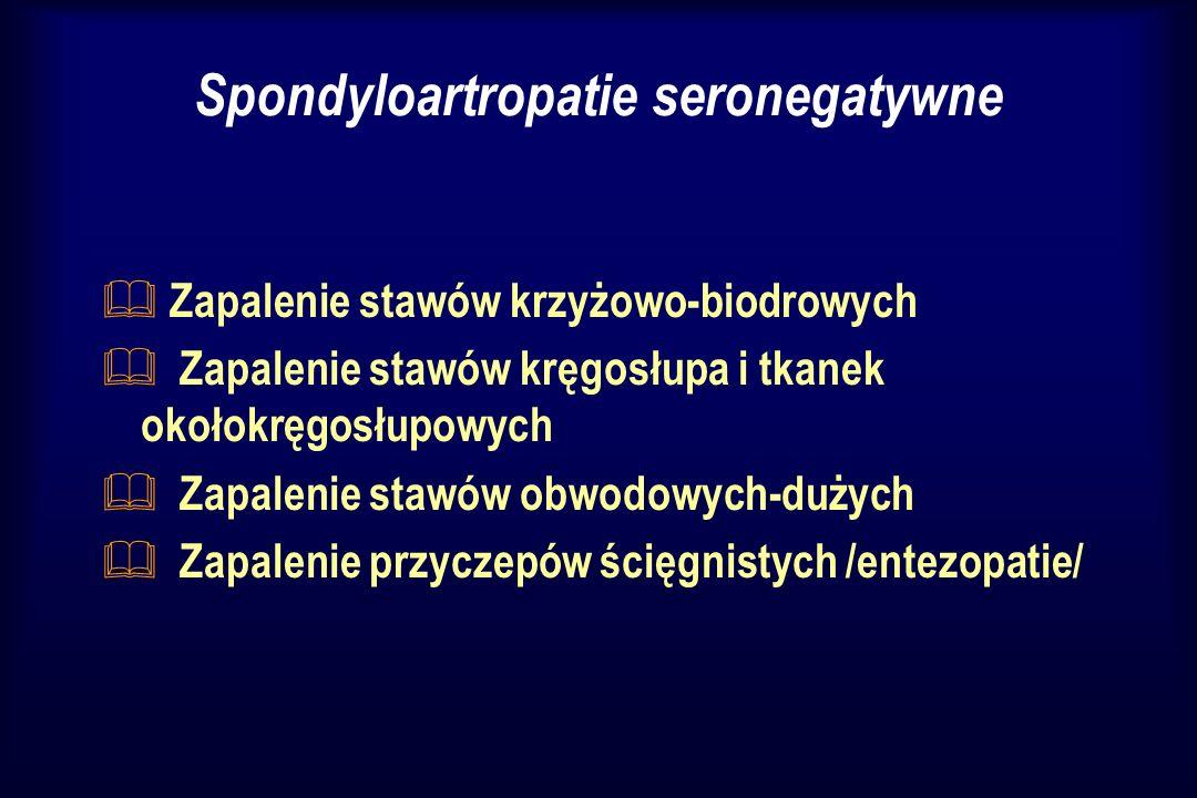 & Zmiany zapalne w innych narządach- zapalenie naczyniówki, łuszczyca skórna, zapalenie macicy/zapalenie cewki moczowej ostra biegunka & Brak czynnika reumatoidalnego & Zbieżność z antygenem HLA B 27