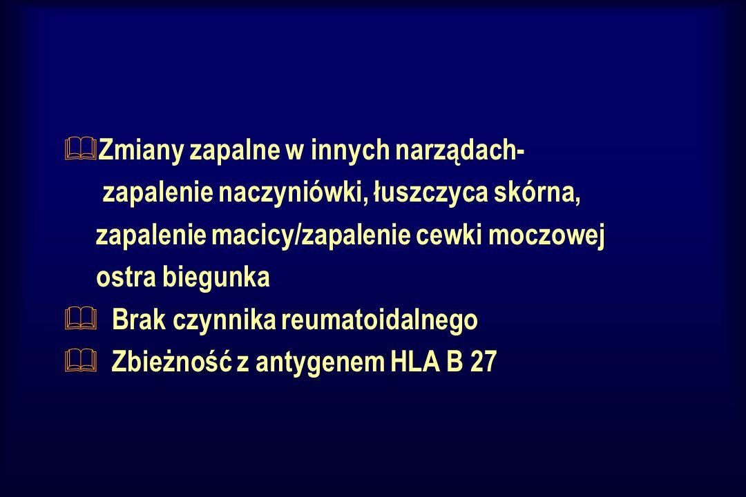 Zapalenia stawów w przebiegu chorób jelit - (PNZJ) wyróżnia się & chorobę Crohna (w Polsce nazywaną chorobą Leśniowskiego-Crohna), & wrzodziejące zapalenie jelita grubego ( colitis ulcerosa ) & nieokreślone zapalenie jelita grubego.