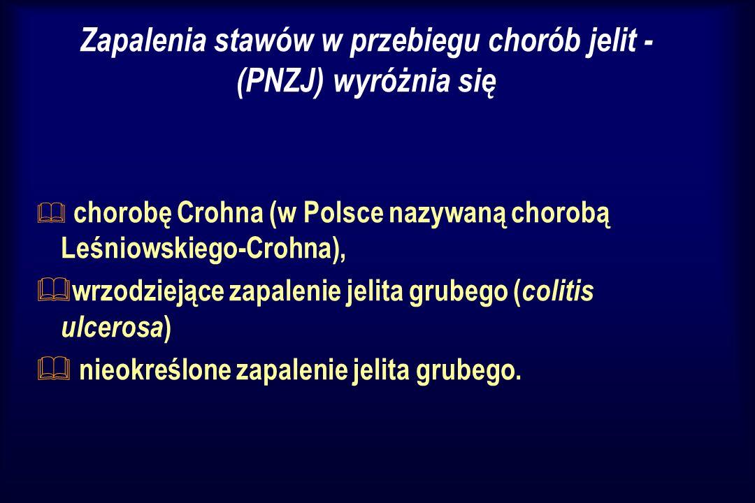 Zapalenia stawów w przebiegu chorób jelit - (PNZJ) wyróżnia się & chorobę Crohna (w Polsce nazywaną chorobą Leśniowskiego-Crohna), & wrzodziejące zapa