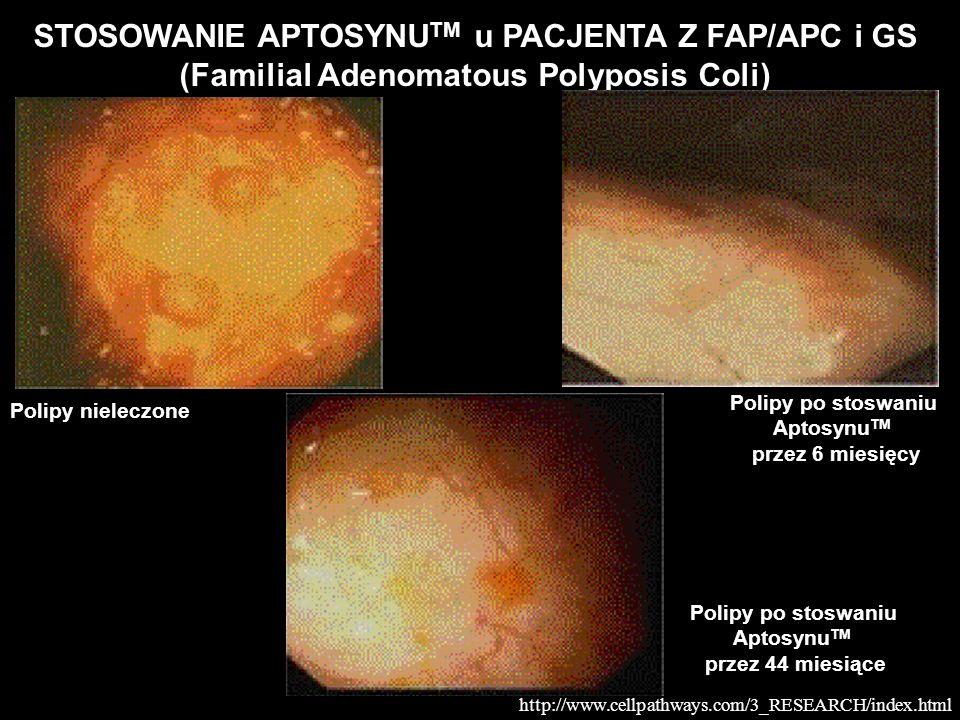 STOSOWANIE APTOSYNU TM u PACJENTA Z FAP/APC i GS (Familial Adenomatous Polyposis Coli) Polipy nieleczone Polipy po stoswaniu Aptosynu TM przez 6 miesi