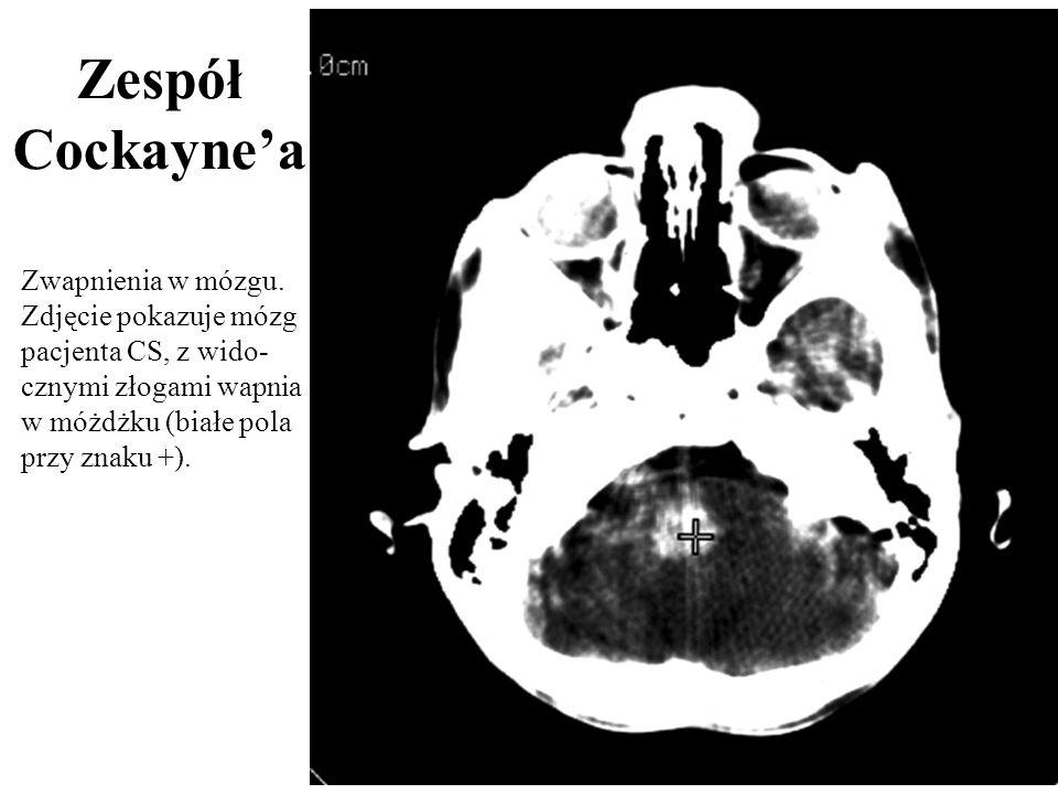 Zwapnienia w mózgu. Zdjęcie pokazuje mózg pacjenta CS, z wido- cznymi złogami wapnia w móżdżku (białe pola przy znaku +). Zespół Cockaynea