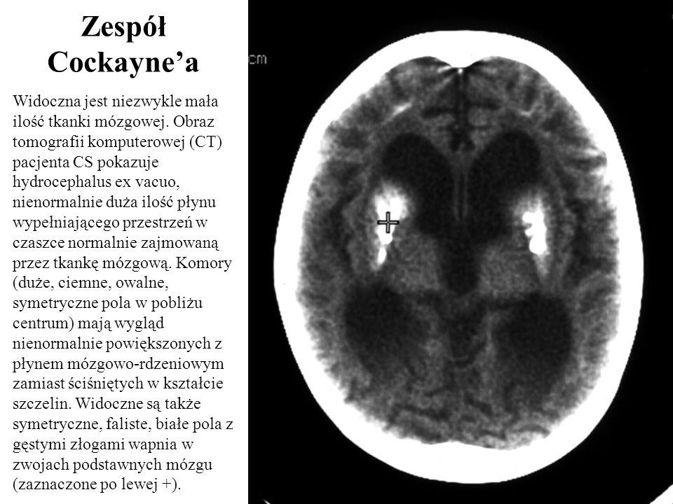 Widoczna jest niezwykle mała ilość tkanki mózgowej. Obraz tomografii komputerowej (CT) pacjenta CS pokazuje hydrocephalus ex vacuo, nienormalnie duża