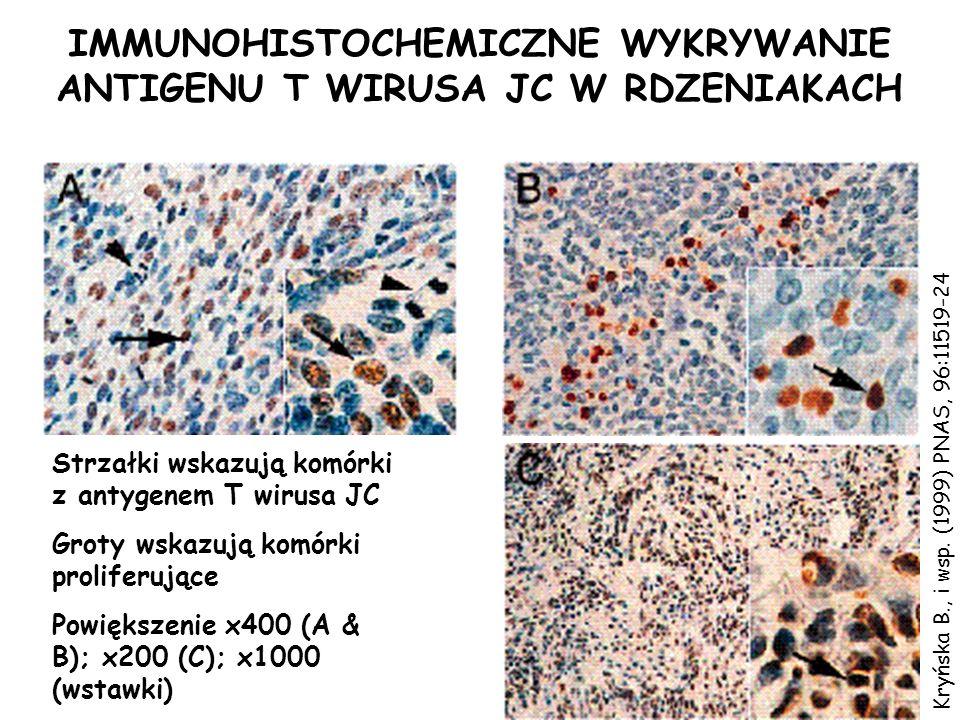 IMMUNOHISTOCHEMICZNE WYKRYWANIE ANTIGENU T WIRUSA JC W RDZENIAKACH Powiększenie x400 (A & B); x200 (C); x1000 (wstawki) Groty wskazują komórki prolife