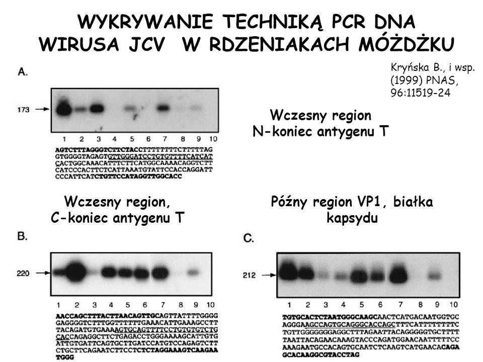 WYKRYWANIE TECHNIKĄ PCR DNA WIRUSA JCV W RDZENIAKACH MÓŻDŻKU Wczesny region N-koniec antygenu T Wczesny region, C-koniec antygenu T Późny region VP1,