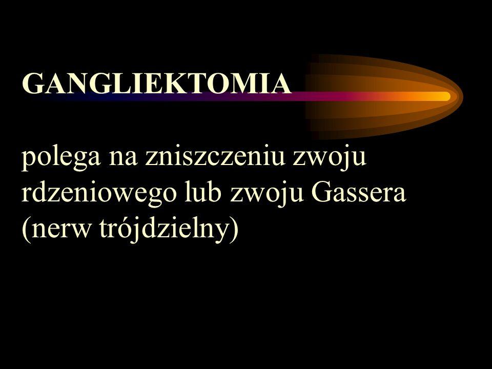 GANGLIEKTOMIA polega na zniszczeniu zwoju rdzeniowego lub zwoju Gassera (nerw trójdzielny)