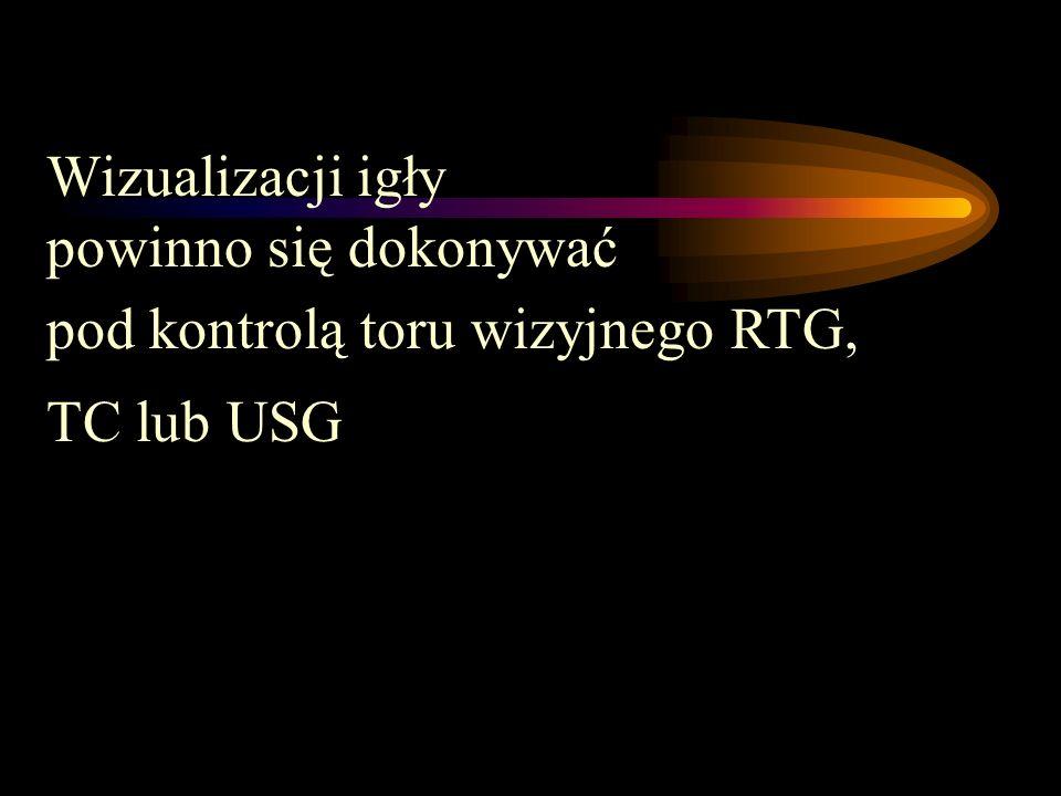 Wizualizacji igły powinno się dokonywać pod kontrolą toru wizyjnego RTG, TC lub USG