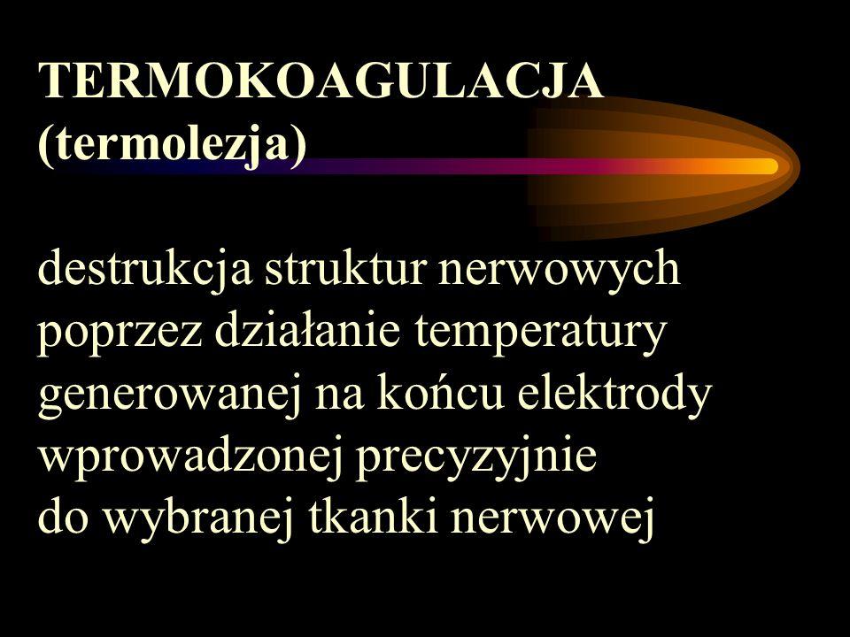 TERMOKOAGULACJA (termolezja) destrukcja struktur nerwowych poprzez działanie temperatury generowanej na końcu elektrody wprowadzonej precyzyjnie do wy