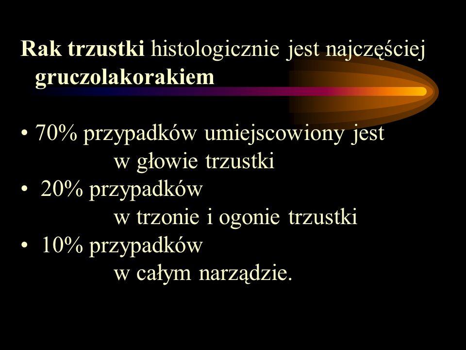Rak trzustki histologicznie jest najczęściej gruczolakorakiem 70% przypadków umiejscowiony jest w głowie trzustki 20% przypadków w trzonie i ogonie tr