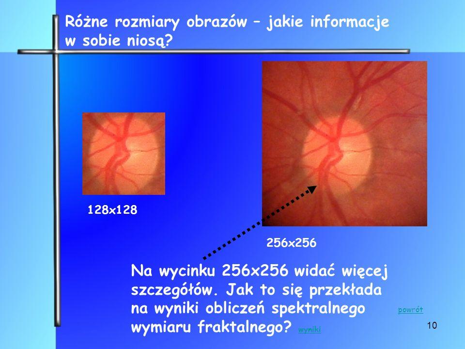 10 128x128 256x256 Różne rozmiary obrazów – jakie informacje w sobie niosą? Na wycinku 256x256 widać więcej szczegółów. Jak to się przekłada na wyniki
