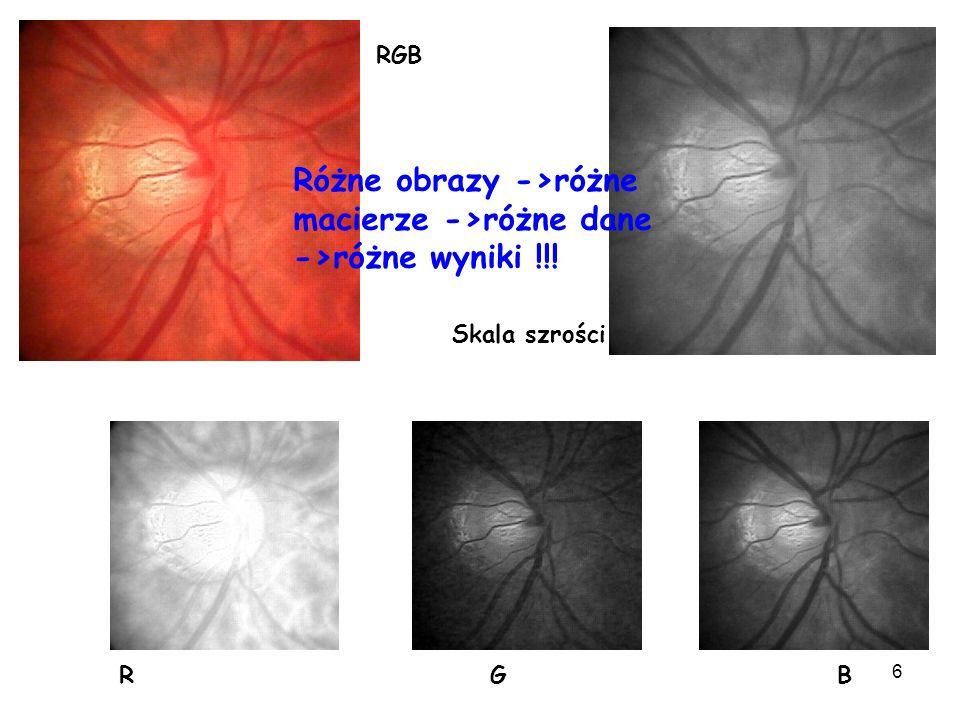 6 Skala szrości R G B RGB Różne obrazy ->różne macierze ->różne dane ->różne wyniki !!!