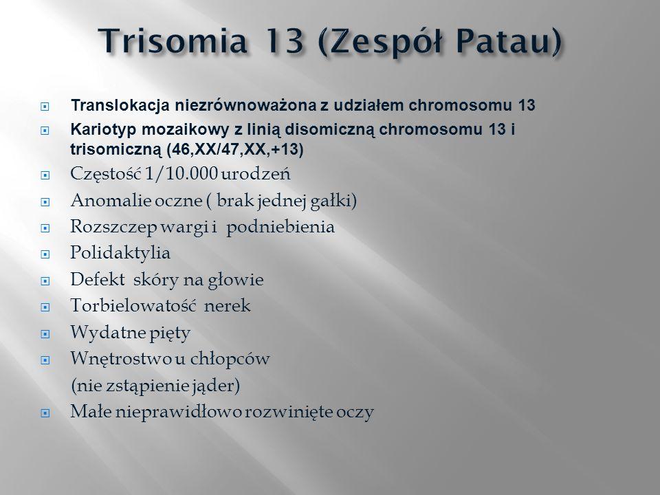 Translokacja niezrównoważona z udziałem chromosomu 13 Kariotyp mozaikowy z linią disomiczną chromosomu 13 i trisomiczną (46,XX/47,XX,+13) Częstość 1/1