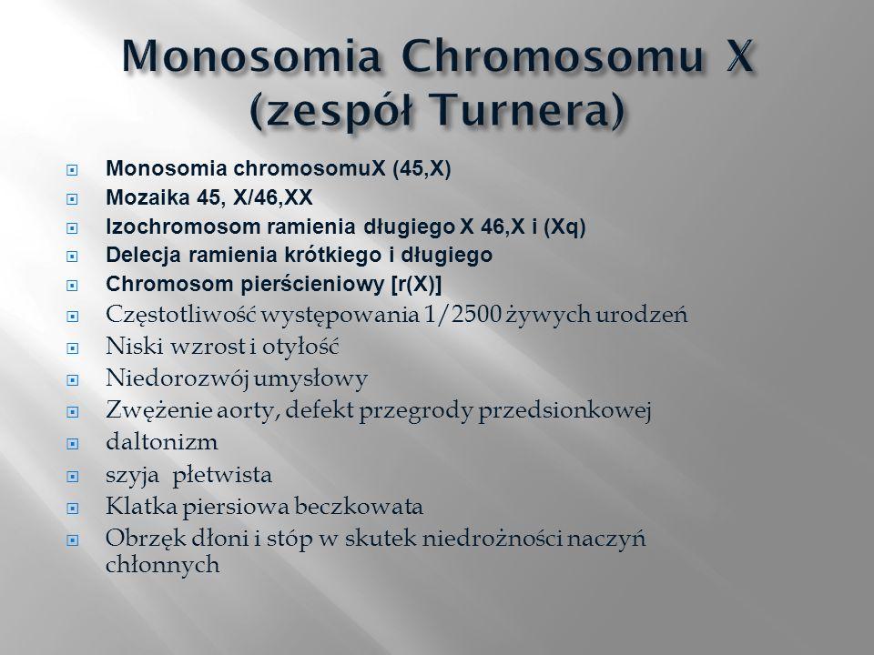 Monosomia chromosomuX (45,X) Mozaika 45, X/46,XX Izochromosom ramienia długiego X 46,X i (Xq) Delecja ramienia krótkiego i długiego Chromosom pierście