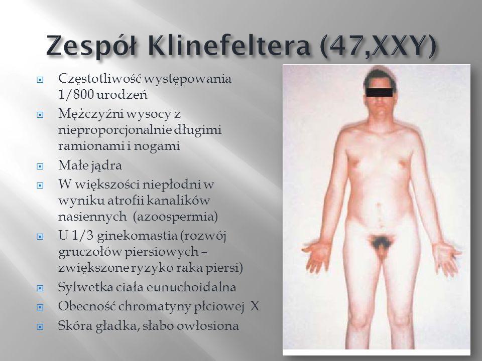 Częstotliwość występowania 1/800 urodzeń Mężczyźni wysocy z nieproporcjonalnie długimi ramionami i nogami Małe jądra W większości niepłodni w wyniku a