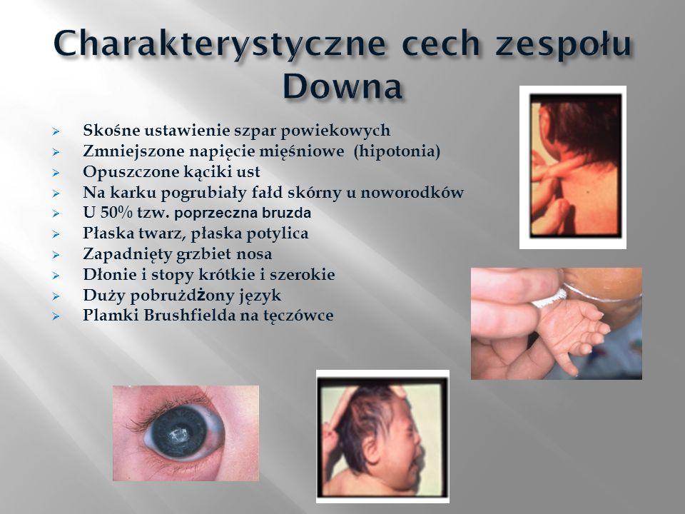 Skośne ustawienie szpar powiekowych Zmniejszone napięcie mięśniowe (hipotonia) Opuszczone kąciki ust Na karku pogrubiały fałd skórny u noworodków U 50