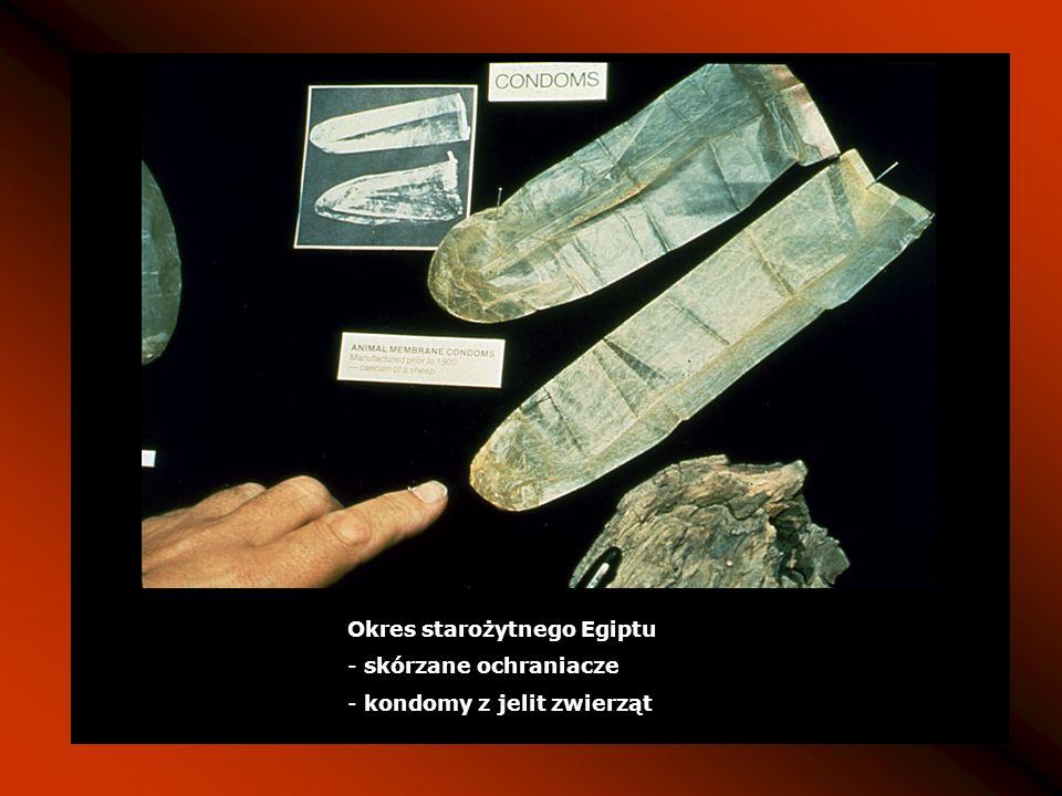 Okres starożytnego Egiptu - skórzane ochraniacze - kondomy z jelit zwierząt