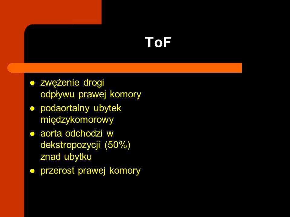 zwężenie drogi odpływu prawej komory podaortalny ubytek międzykomorowy aorta odchodzi w dekstropozycji (50%) znad ubytku przerost prawej komory ToF