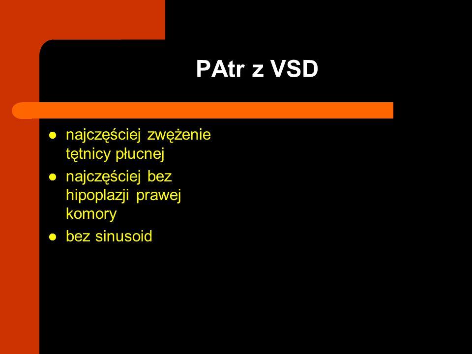 najczęściej zwężenie tętnicy płucnej najczęściej bez hipoplazji prawej komory bez sinusoid PAtr z VSD