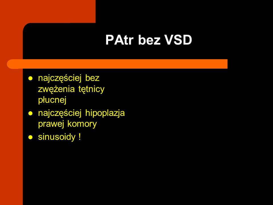 najczęściej bez zwężenia tętnicy płucnej najczęściej hipoplazja prawej komory sinusoidy ! PAtr bez VSD