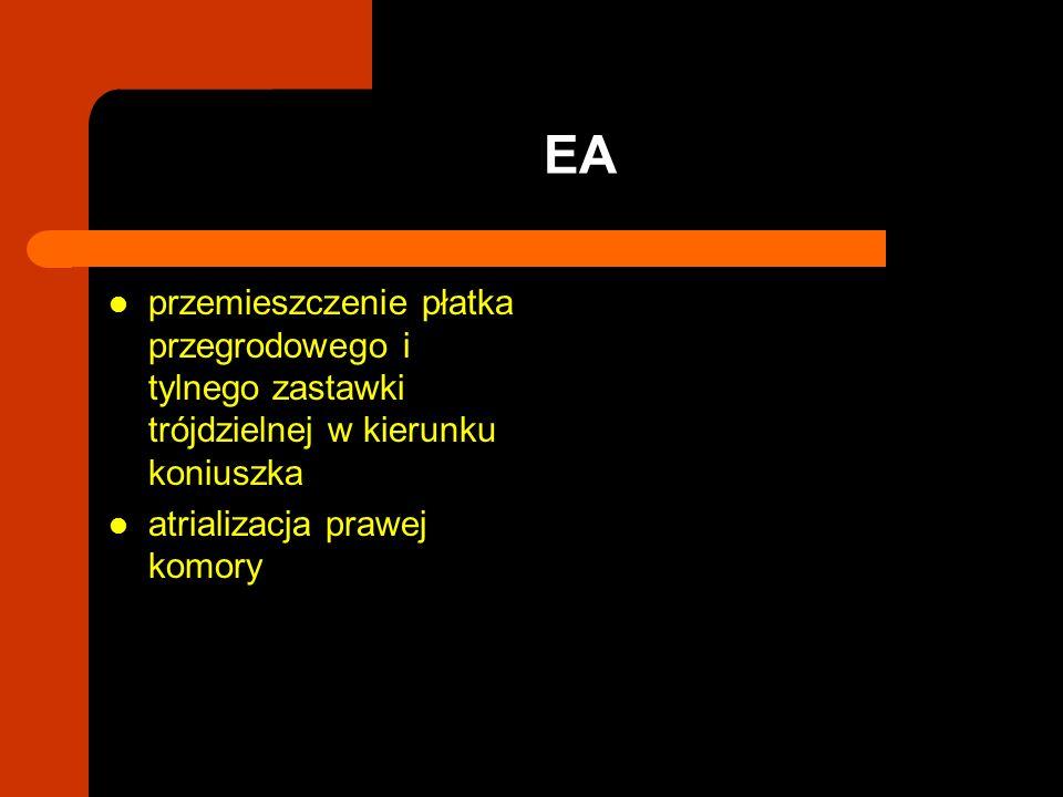 przemieszczenie płatka przegrodowego i tylnego zastawki trójdzielnej w kierunku koniuszka atrializacja prawej komory EA