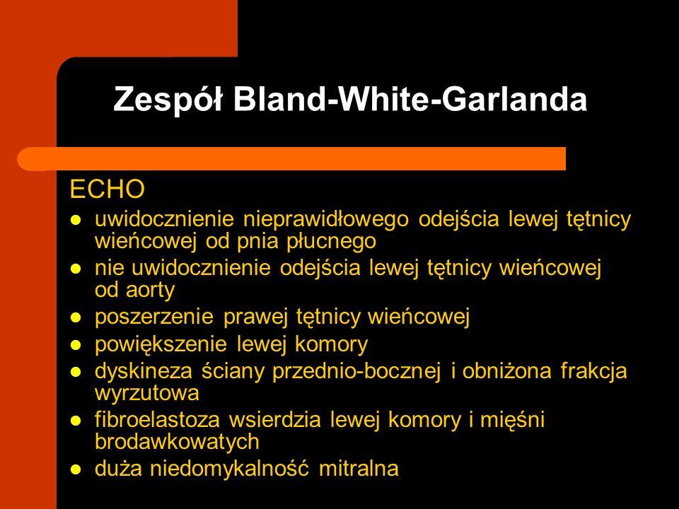 Zespół Bland-White-Garlanda ECHO uwidocznienie nieprawidłowego odejścia lewej tętnicy wieńcowej od pnia płucnego nie uwidocznienie odejścia lewej tętn