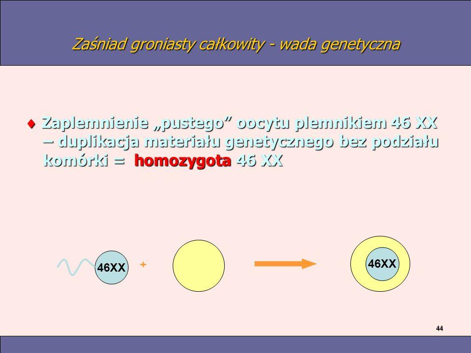 44 Zaśniad groniasty całkowity - wada genetyczna Zaplemnienie pustego oocytu plemnikiem 46 XX – duplikacja materiału genetycznego bez podziału komórki = homozygota 46 XX Zaplemnienie pustego oocytu plemnikiem 46 XX – duplikacja materiału genetycznego bez podziału komórki = homozygota 46 XX 46XX +