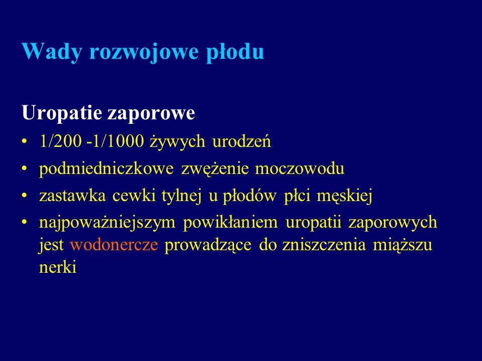 Wady rozwojowe płodu Uropatie zaporowe 1/200 -1/1000 żywych urodzeń podmiedniczkowe zwężenie moczowodu zastawka cewki tylnej u płodów płci męskiej naj
