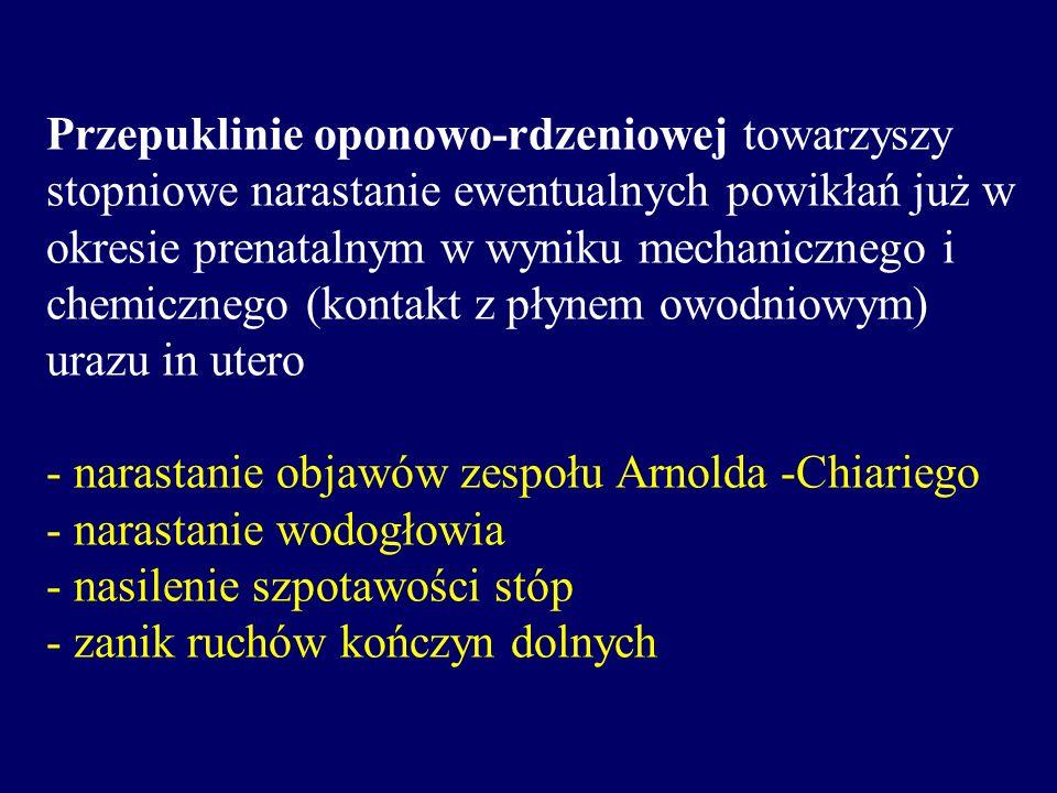 Przepuklinie oponowo-rdzeniowej towarzyszy stopniowe narastanie ewentualnych powikłań już w okresie prenatalnym w wyniku mechanicznego i chemicznego (
