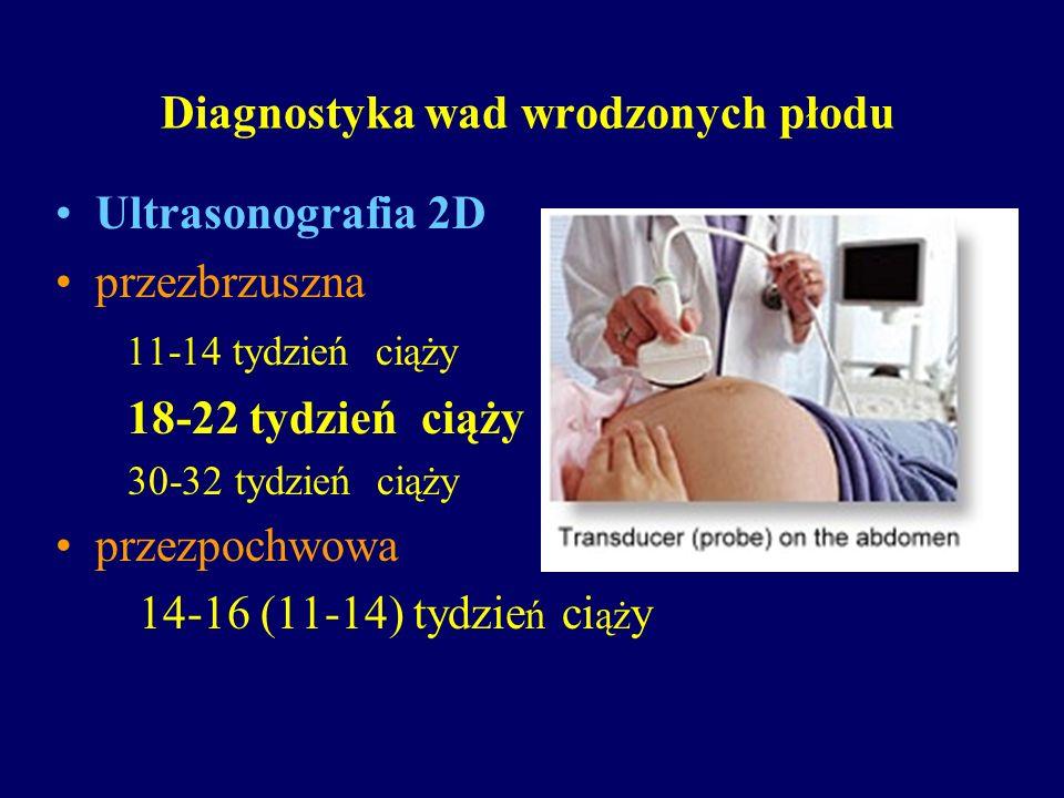 Diagnostyka wad wrodzonych płodu Ultrasonografia 2D przezbrzuszna 11-14 tydzień ciąży 18-22 tydzień ciąży 30-32 tydzień ciąży przezpochwowa 14-16 (11-
