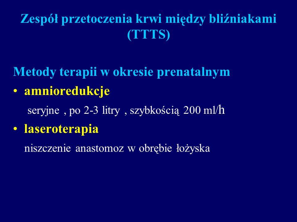 Zespół przetoczenia krwi między bliźniakami (TTTS) Metody terapii w okresie prenatalnym amnioredukcje seryjne, po 2-3 litry, szybkością 200 ml/ h lase