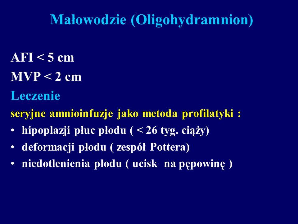 Małowodzie (Oligohydramnion) AFI < 5 cm MVP < 2 cm Leczenie seryjne amnioinfuzje jako metoda profilatyki : hipoplazji płuc płodu ( < 26 tyg. ciąży) de