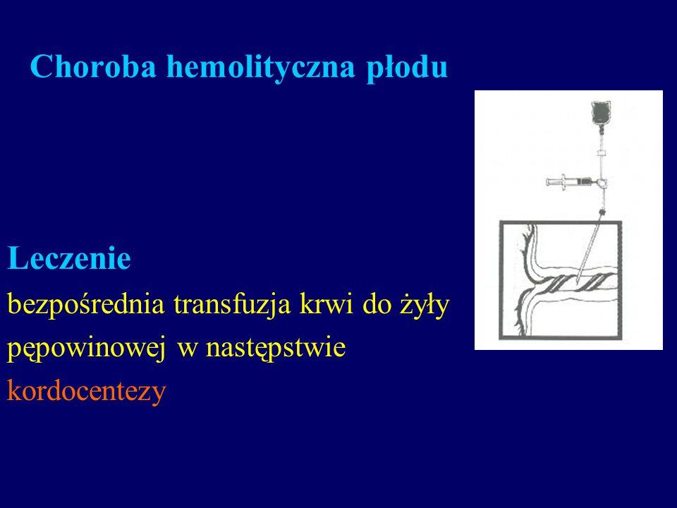 Choroba hemolityczna płodu Leczenie bezpośrednia transfuzja krwi do żyły pępowinowej w następstwie kordocentezy