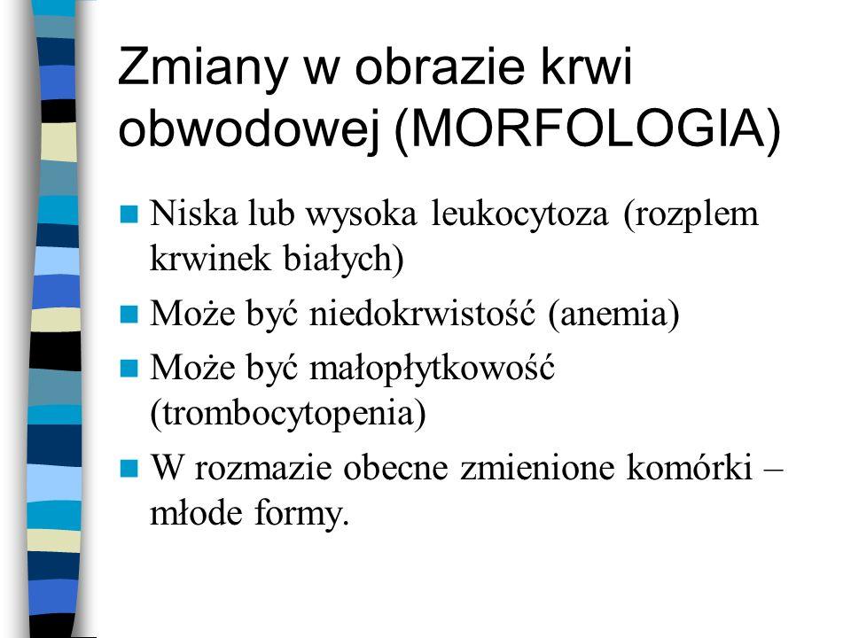 Zmiany w obrazie krwi obwodowej (MORFOLOGIA) Niska lub wysoka leukocytoza (rozplem krwinek białych) Może być niedokrwistość (anemia) Może być małopłyt