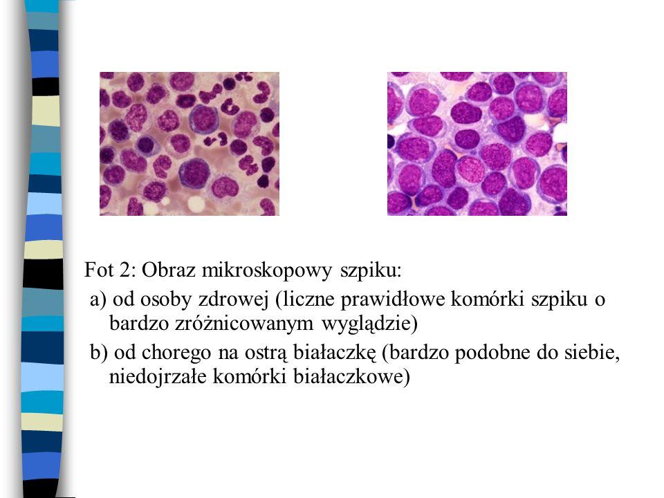 Fot 2: Obraz mikroskopowy szpiku: a) od osoby zdrowej (liczne prawidłowe komórki szpiku o bardzo zróżnicowanym wyglądzie) b) od chorego na ostrą biała