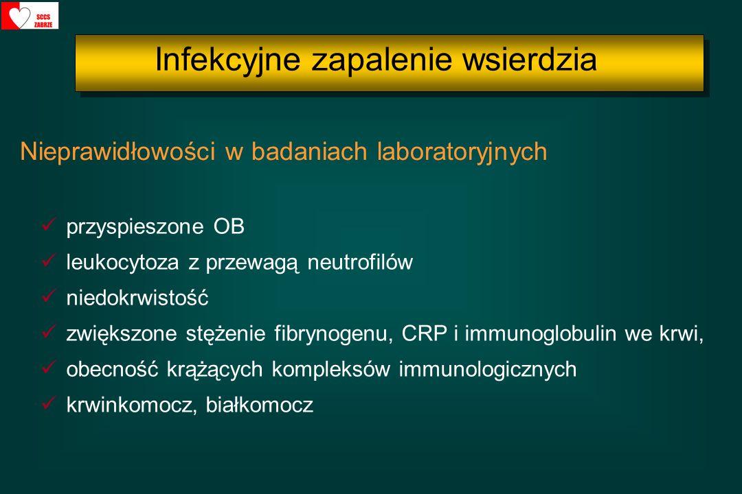 przyspieszone OB leukocytoza z przewagą neutrofilów niedokrwistość zwiększone stężenie fibrynogenu, CRP i immunoglobulin we krwi, obecność krążących k