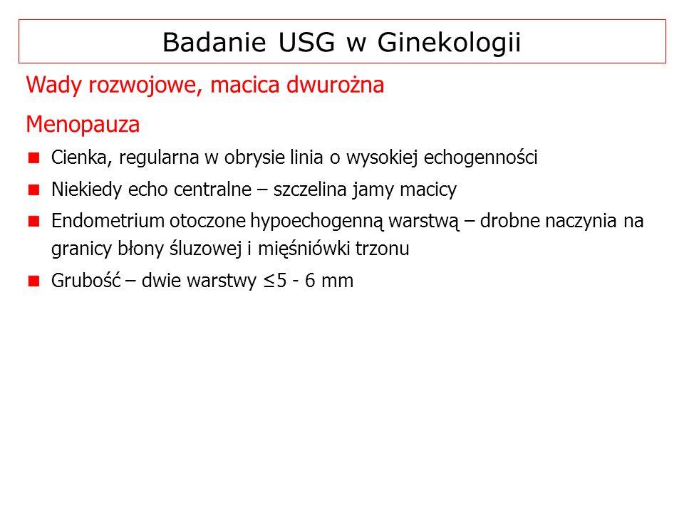 Wady rozwojowe, macica dwurożna Badanie USG w Ginekologii Cienka, regularna w obrysie linia o wysokiej echogenności Niekiedy echo centralne – szczelin