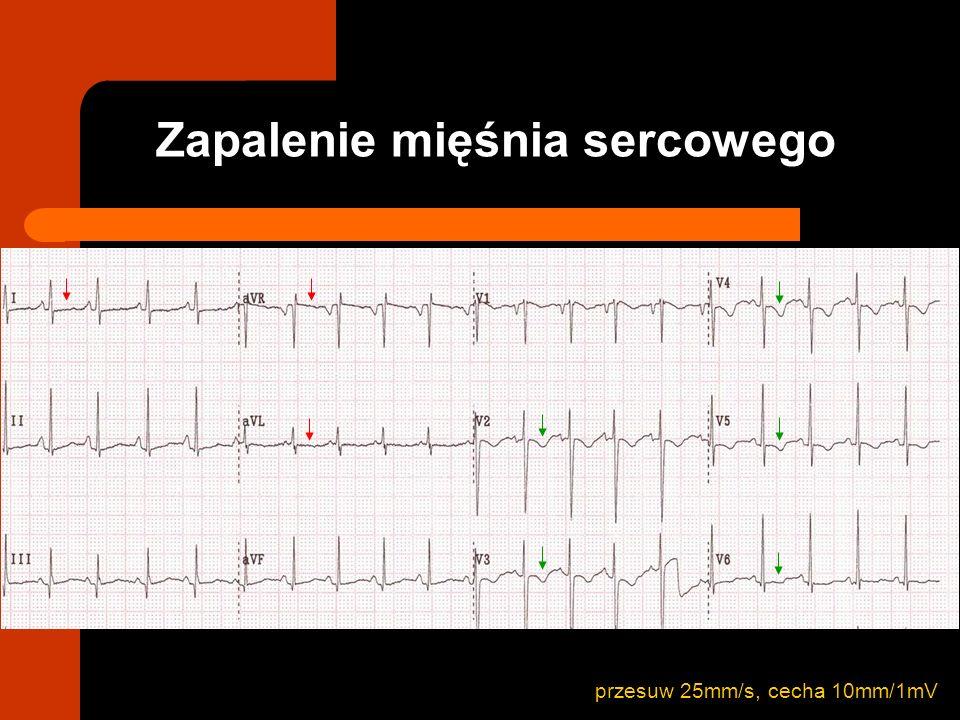 RTG powiększenie sylwetki serca EKG niska amplituda zespołów QRS uogólnione uniesienie odcinka ST uogólnione odwrócone załamki T ECHO płyn w worku osierdziowym Zapalenie osierdzia