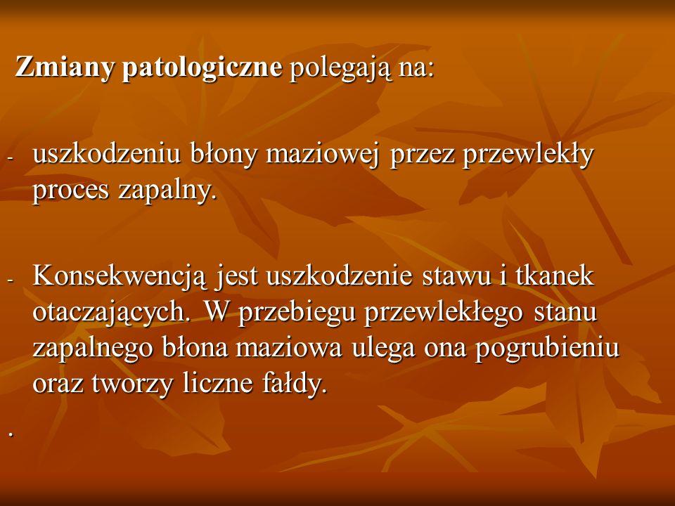 Zmiany patologiczne polegają na: Zmiany patologiczne polegają na: - uszkodzeniu błony maziowej przez przewlekły proces zapalny. - Konsekwencją jest us