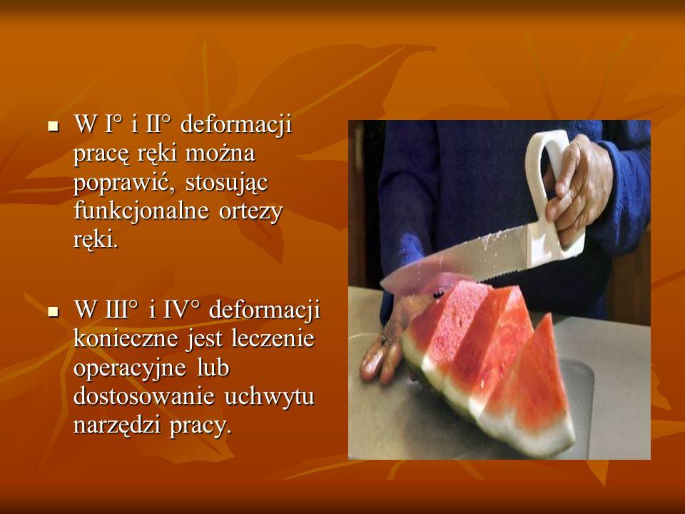 W I° i II° deformacji pracę ręki można poprawić, stosując funkcjonalne ortezy ręki. W I° i II° deformacji pracę ręki można poprawić, stosując funkcjon