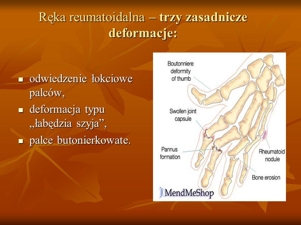 Ręka reumatoidalna – trzy zasadnicze deformacje: odwiedzenie łokciowe palców, odwiedzenie łokciowe palców, deformacja typu łabędzia szyja, deformacja