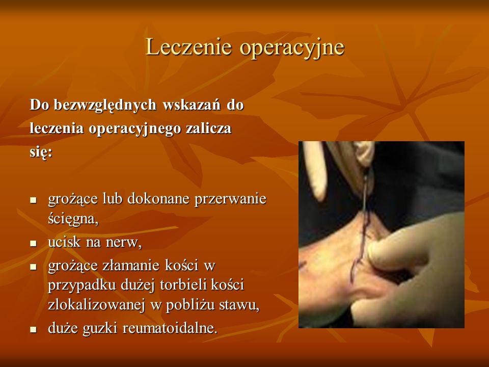 Leczenie operacyjne Do bezwzględnych wskazań do leczenia operacyjnego zalicza się: grożące lub dokonane przerwanie ścięgna, grożące lub dokonane przer