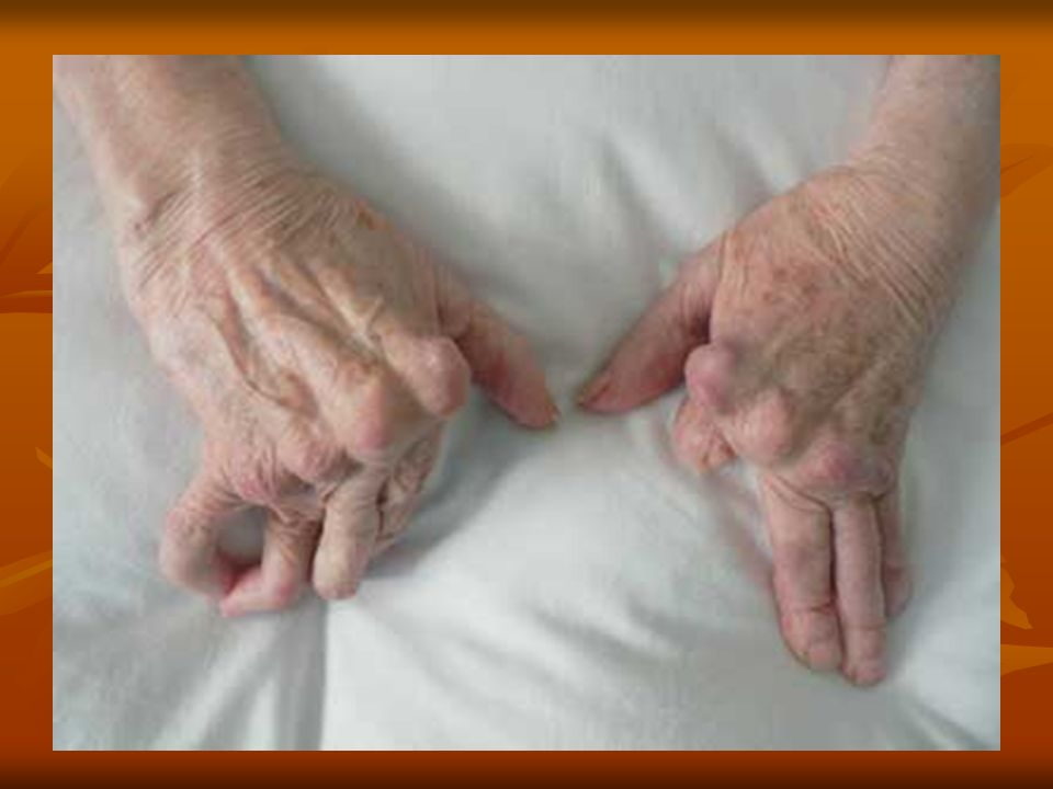 - W miarę postępu choroby proces zapalny obejmuje coraz większą liczbę stawów w kierunku od obwodu do linii środkowej ciała.