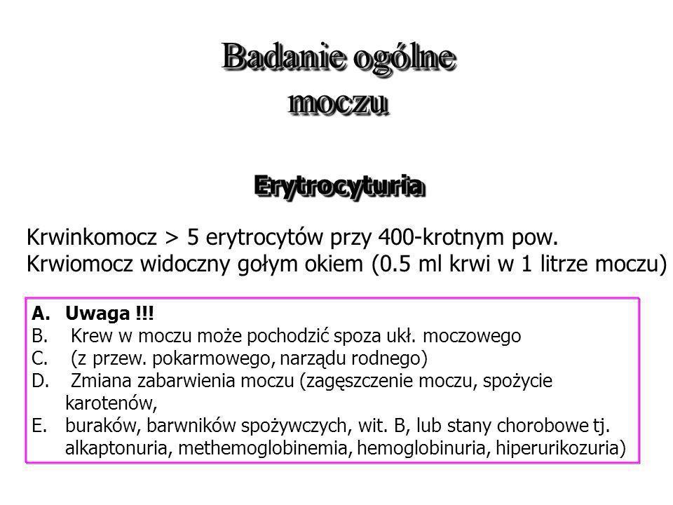 Badanie ogólne moczu ErytrocyturiaErytrocyturia Krwinkomocz > 5 erytrocytów przy 400-krotnym pow. Krwiomocz widoczny gołym okiem (0.5 ml krwi w 1 litr