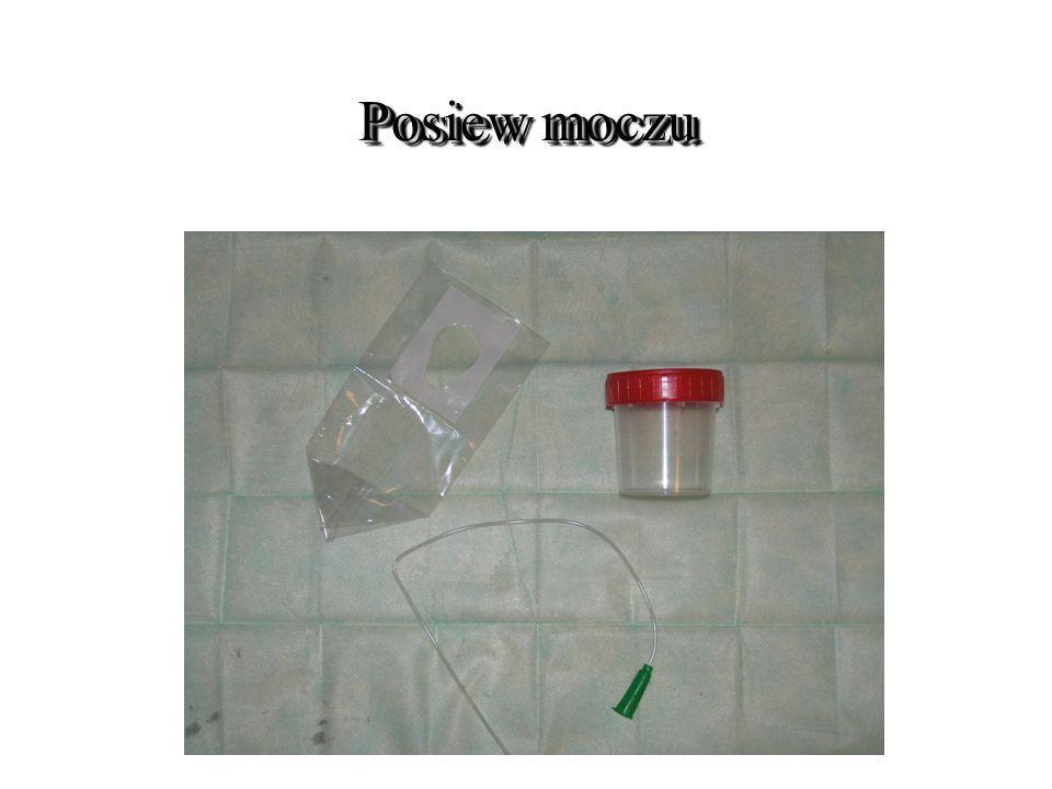 Badanie mikrobiologiczne moczu Badanie mikrobiologiczne moczu ZNAMIENNA BAKTERIURIA A.