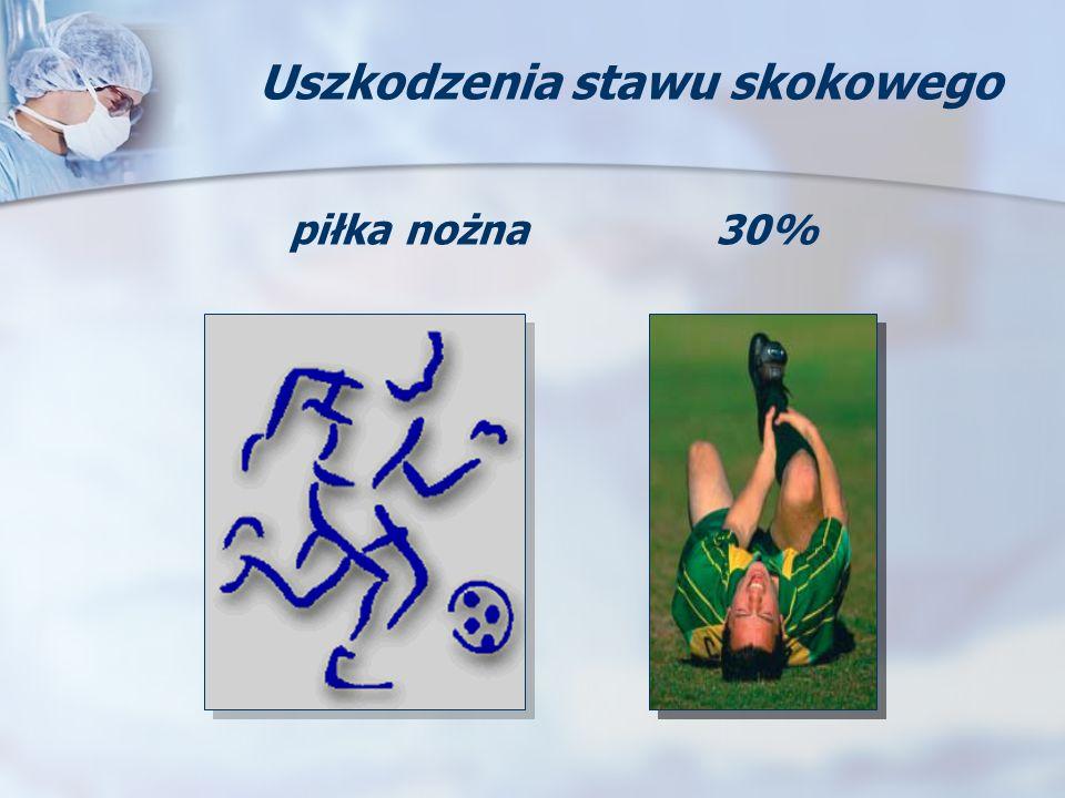 piłka nożna30% Uszkodzenia stawu skokowego