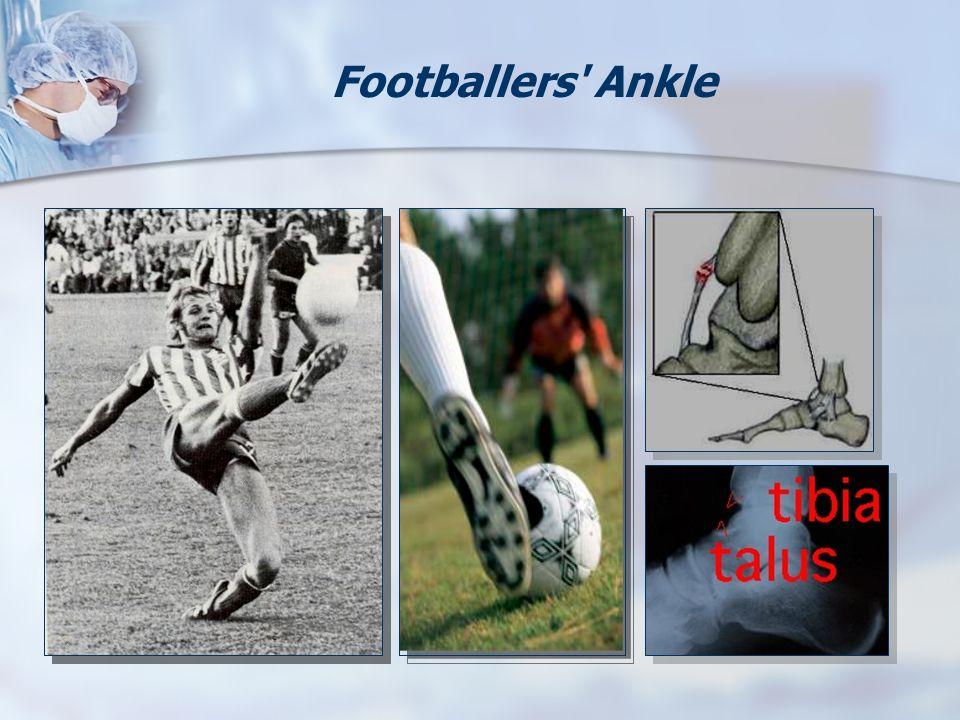 Footballers' Ankle