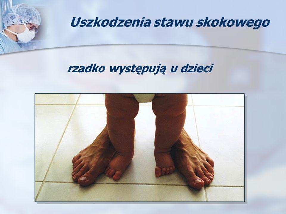 rzadko występują u dzieci Uszkodzenia stawu skokowego