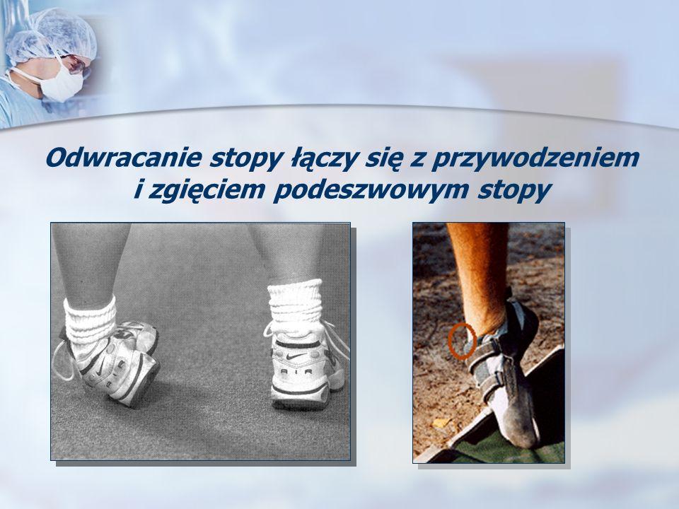 Odwracanie stopy łączy się z przywodzeniem i zgięciem podeszwowym stopy