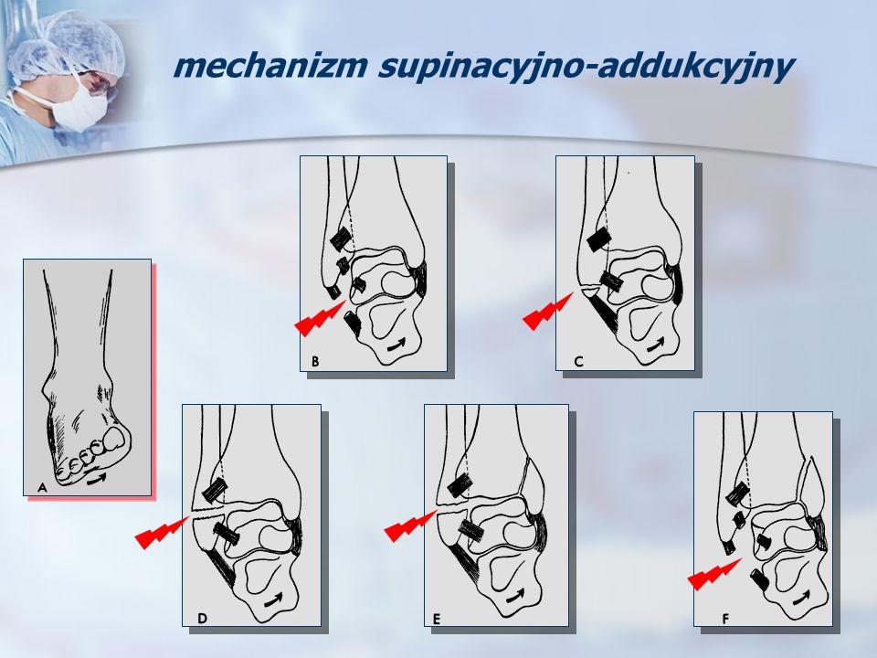 mechanizm supinacyjno-addukcyjny